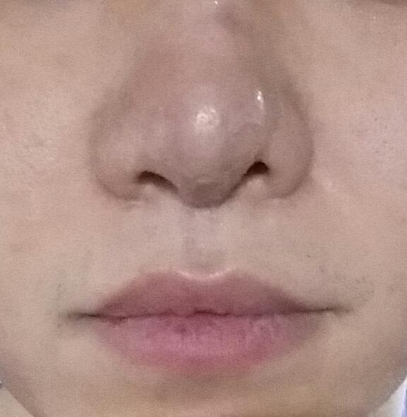재수술후 2주된  코
